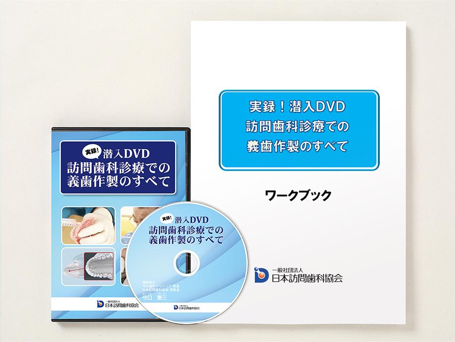 実録!潜入DVD「訪問歯科診療での義歯作製のすべて」